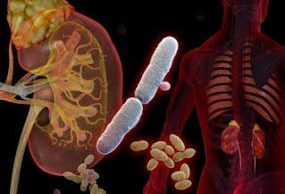 Профілактика інфекцій сечовивідних шляхів